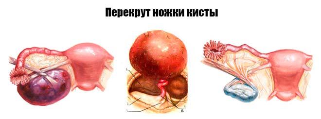 Муцинозная цистаденома яичника: причины, симптомы, лечение