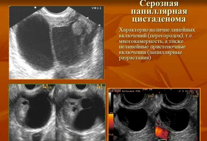 Папиллярная цистаденома яичника: виды, симптомы, последствия
