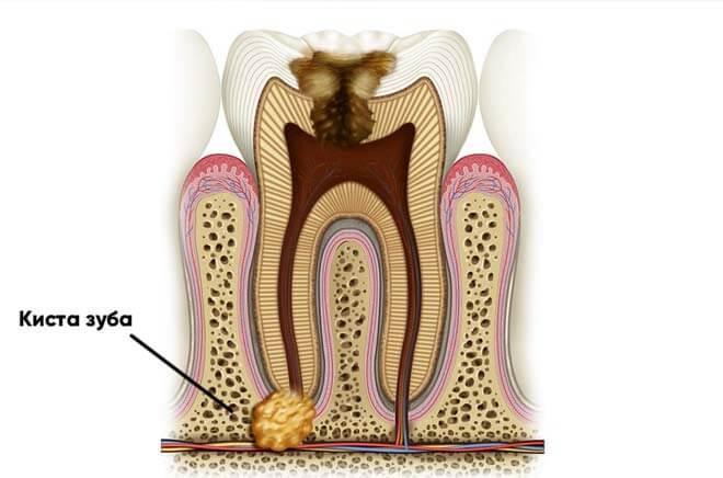 Как долго может быть киста на зубе
