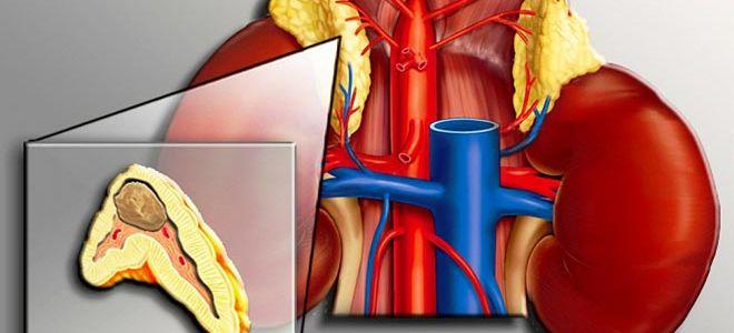 Симптомы и способы лечения феохромоцитомы
