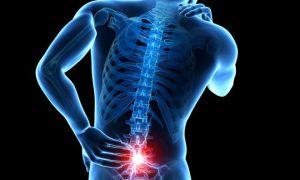 Причины и способы лечения периневральной кисты позвоночника