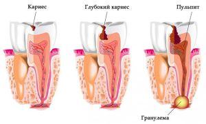 Симптомы и возможные осложнения гранулемы зуба