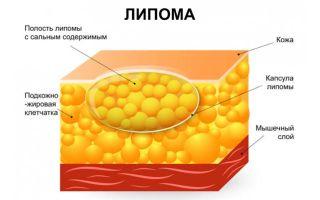 Причины возникновения липомы и возможные осложнения