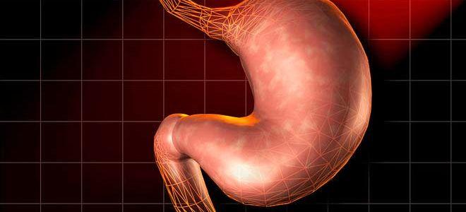 Что такое кисты желудка и признаки развития патологии