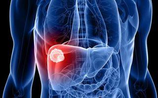 Что такое гемангиома в печени и методы лечения заболевания