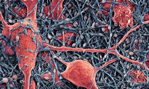 Что такое кистозно-глиозные изменения головного мозга и чем опасны