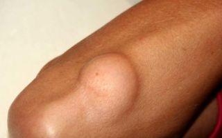 Причины появления жировика на руке и методы терапии