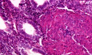 Симптомы и способы лечения диффузных изменений миометрия