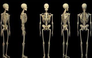 Что такое остеома кости и методы диагностики патологии