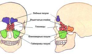 Виды операций по удалению кисты носовых пазух