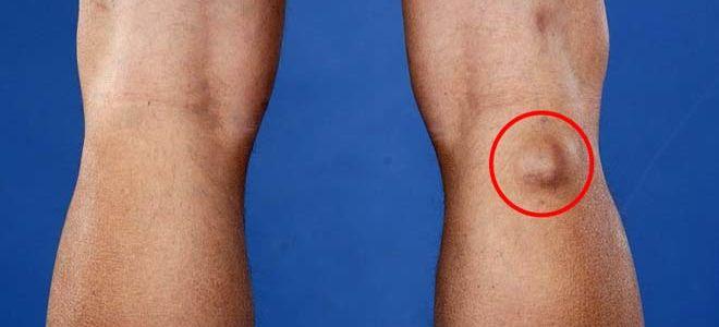 Лечение и виды операций по удалению кисты Бейкера коленного сустава