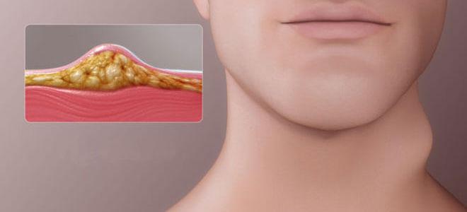 Методы лечения и удаления липомы на теле