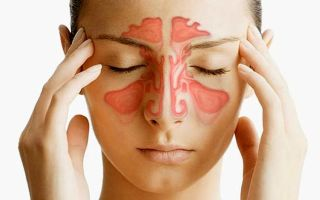 Симптомы и лечение кисты лобной пазухи