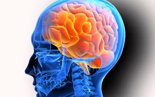 Диагностика ликворной кисты головного мозга и особенности лечения