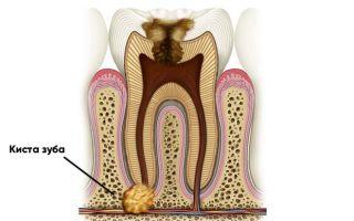 Симптомы и причины развития кисты зуба