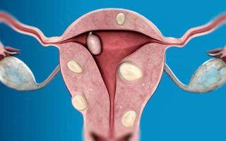 Что такое миома матки у женщин и признаки заболевания