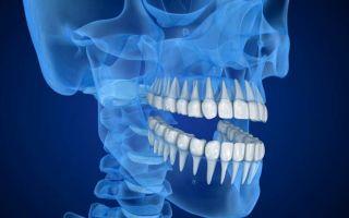 Симптомы и методы удаления киста верхней или нижней челюсти