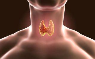 Признаки и возможные осложнения при кисте щитовидной железы