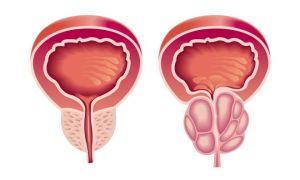 Причины возникновения и симптомы аденомы простаты у мужчин