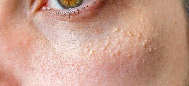 Методы лечения и удаления жировиков на лице