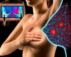 Виды и симптомы фиброзно-кистозной мастопатии молочных желез