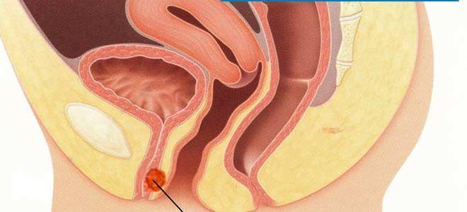 Способы лечения парауретральной кисты у женщин и мужчин