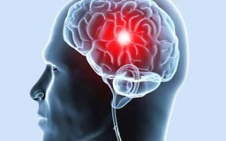 Причины и диагностика гигромы головного мозга