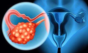 Симптомы и причины поликистоза яичников