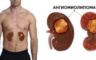 Что такое ангиомиолипомы почек и способы лечения