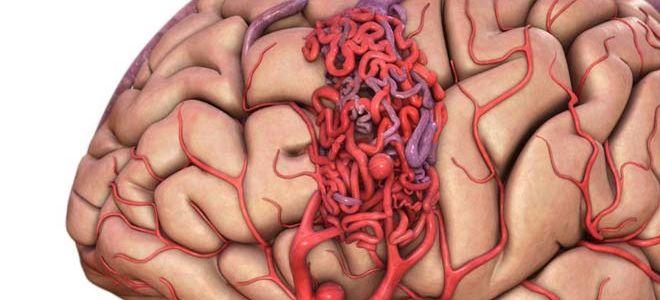 Симптомы и методы лечения ангиомы головного мозга