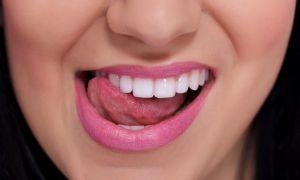 Причины и особенности лечения кисты языка