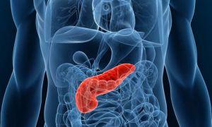 Симптомы кисты поджелудочной железы и возможные последствия