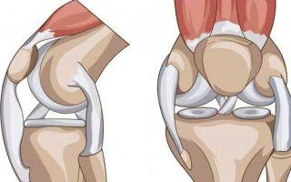 Методы лечения и симптомы образования кисты мениска коленного сустава