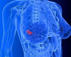 Особенности фиброаденомы молочных желез и методы удаления