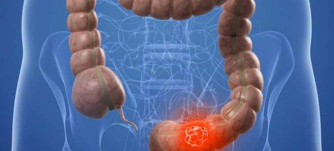 Симптомы и особенности лечения полипов сигмовидной кишки