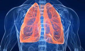 Симптомы и методы лечения кисты в легком