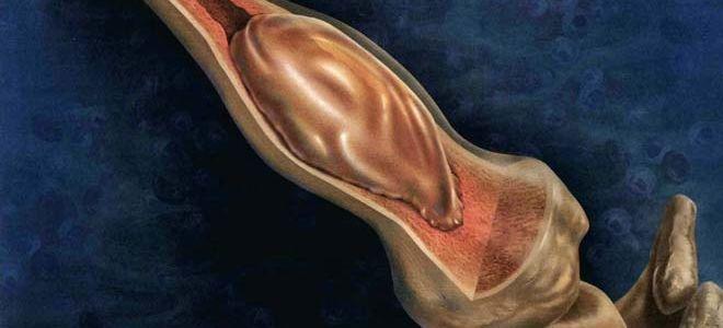 Виды костных кист и особенности патологии