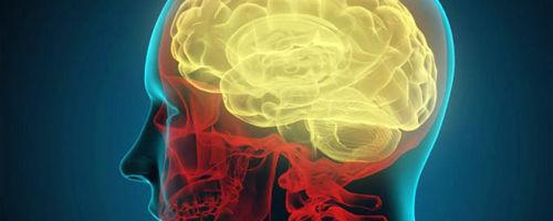 Чем опасны ретроцеребеллярные кисты головного мозга и как их лечить