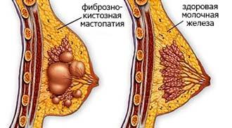 фиброзно-кистозная мастопатия и здоровая молочная железа