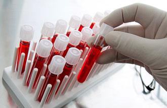 Анализ крови на гормоны