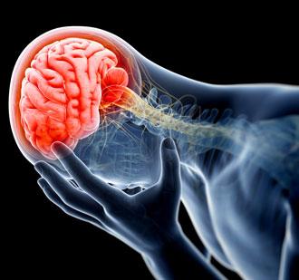 Частые головные боли и повышенное давление - одни из признаков глиоза
