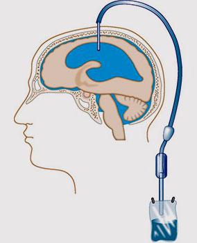 операция по удалению ликворной кисты мозга