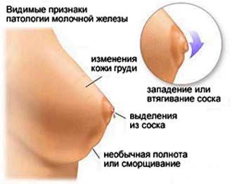 признаки новообразования в груди