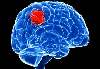 рост кисты в мозге