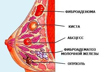 виды новообразований в молочной железе у девушек