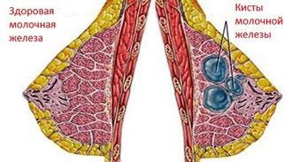 здоровая грудь и грудь с кистозной капсулой