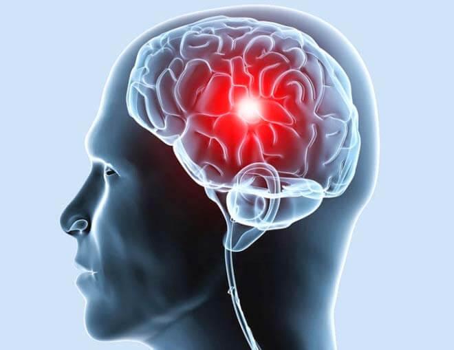 очаг боли в головном мозге