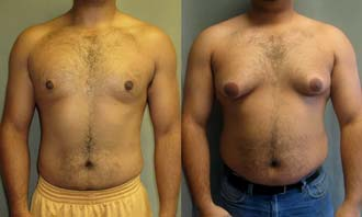 изменение ореола вокруг сосков - признак мастопатии молочных желез у мужчин