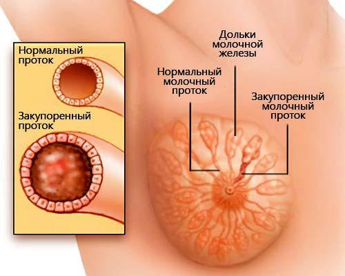 уплотнение и узлы в молочных железах