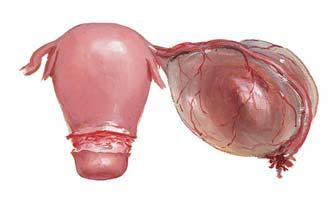 параовариальная киста на яичнике